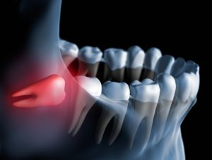 Best Wisdom Teeth pain removal service in chtswood