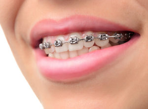about us -wisdom teeth