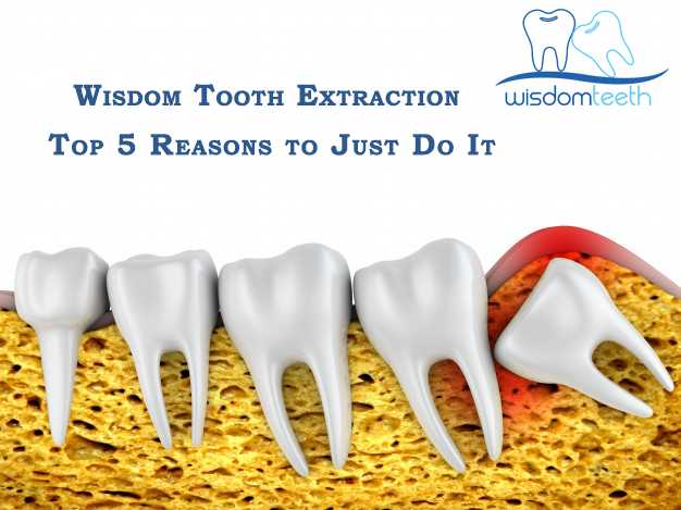 Wisdom Tooth Extraction: Top 5 Reasons to Just Do It