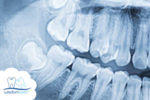 Wisdom Teeth Removal Surgery