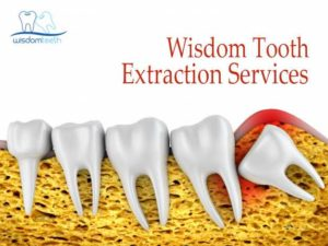 Wisdom Tooth Extraction Services